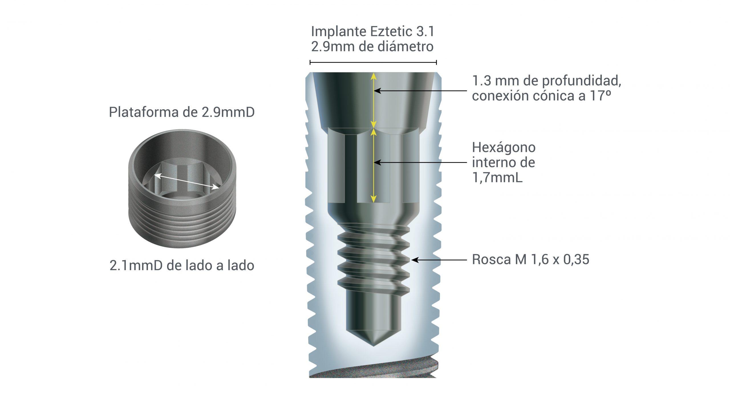 Conexión Cónica y Platform Switching del Implante Dental Eztetic